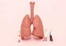 3Dバイオプリントによる肺が世界的に肺移植に利用