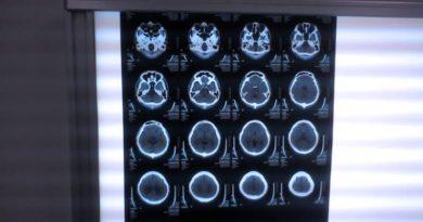 イスラエル全土で医療画像AIソリューションを展開するZebra Medical Vision