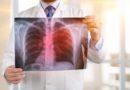 ステージ1の肺がんを発見する革新的な血液検査