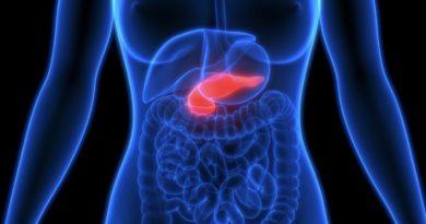 膵臓癌を完治させる可能性を秘めるPJ34